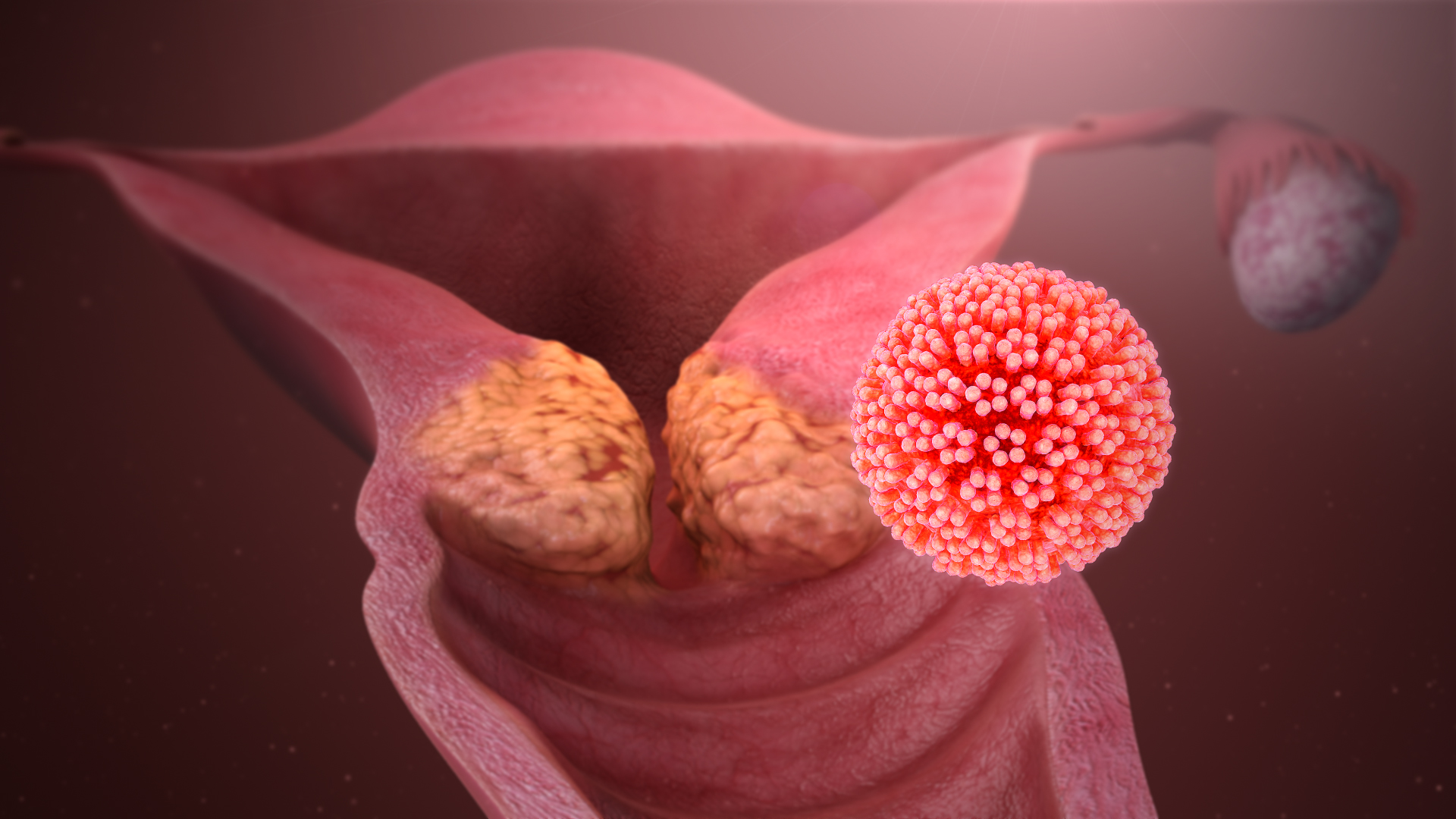 Hpv virus and kissing. Throat Cancer and HPV hpv impfung linz