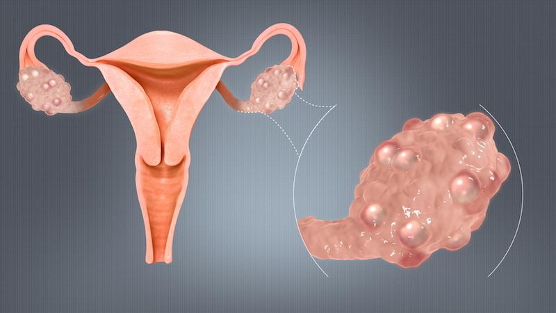 polyzystisches Ovarialsyndrom PCOS